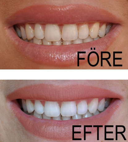 Beconfident före efter bilder och resultat efter tandblekning