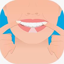 tandblekning-process2-whitening-dentaworks