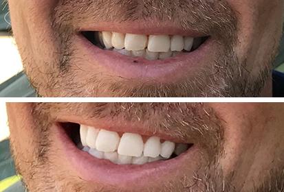 Confidentsmile före efter bild och resultat efter tandblekning